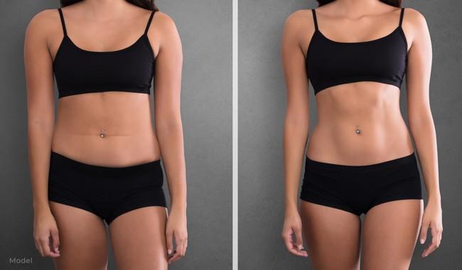 Abdominal High Definition Liposuction Los Angeles Los Angeles California Pasadena Santa Monica Glendale