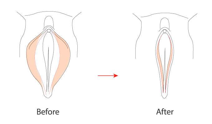 Schematic diagram of labiaplasty for women.